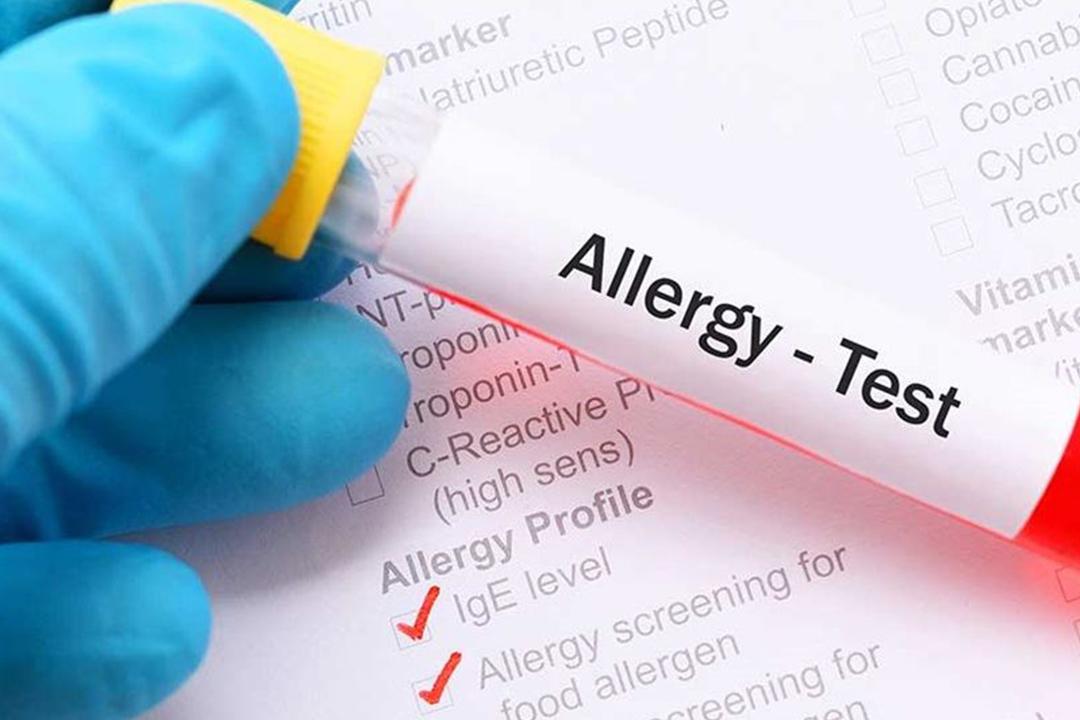 teststing-alergy